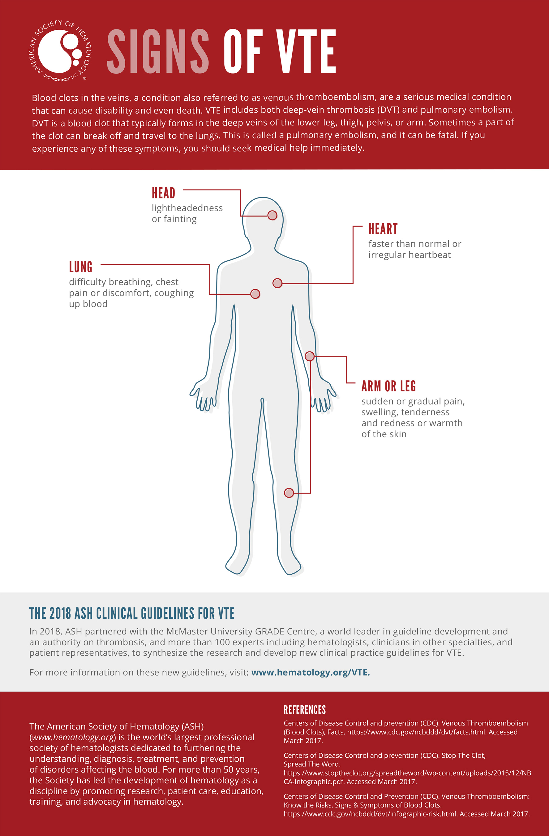 Signs of VTE