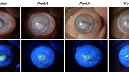 Bonini  S,  Lambiase  A,  Rama  P,  Sinigaglia  F,  Allegretti  M,  Chao  W,  Mantelli  F,  for  the  REPARO Study  Group.  Phase  II  Randomized,  Double-Masked,  Vehicle-Controlled  Trial  of  Recombinant  Human  Nerve  Growth  Factor  for  Neurotrophic  Keratitis.  Ophthalmology.  2018;125:1332-43.