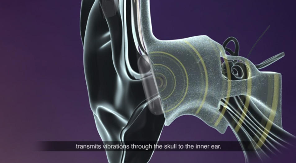 See how Cochlear's innovative new Osia 2 hearing implant system works.