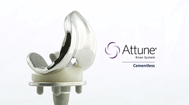 The ATTUNE Cementless Knee combines the proprietary technologies of the ATTUNE Knee System designed to provide stability while the knee is in motion with DePuy Synthes' extensive heritage in rotating platform knees and cementless technology.