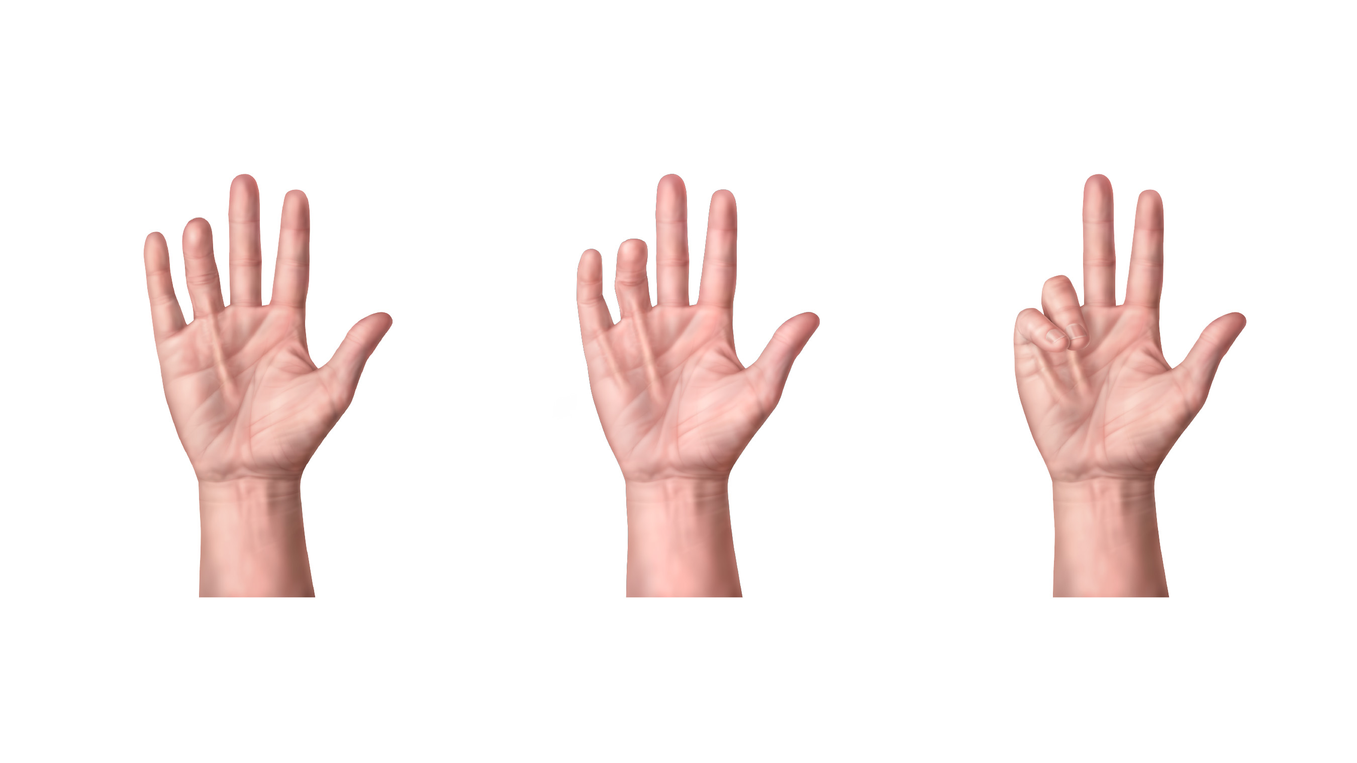 Stages of Dupuytren's Contracture