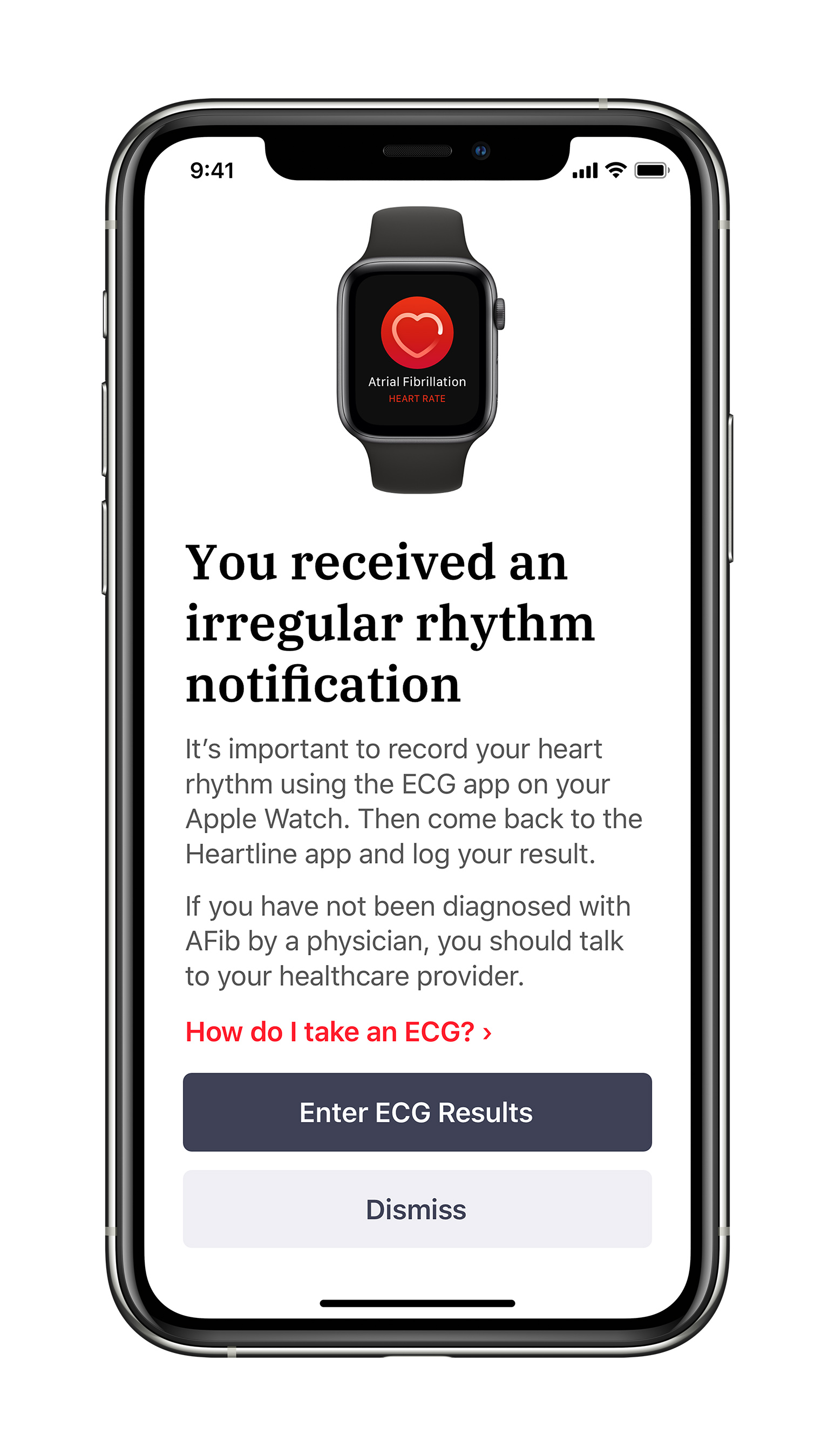 If a study participant in the watch-wearing study arm receives an irregular rhythm notification, they will be prompted through the Heartline™ Study app to complete an ECG on their Apple Watch.