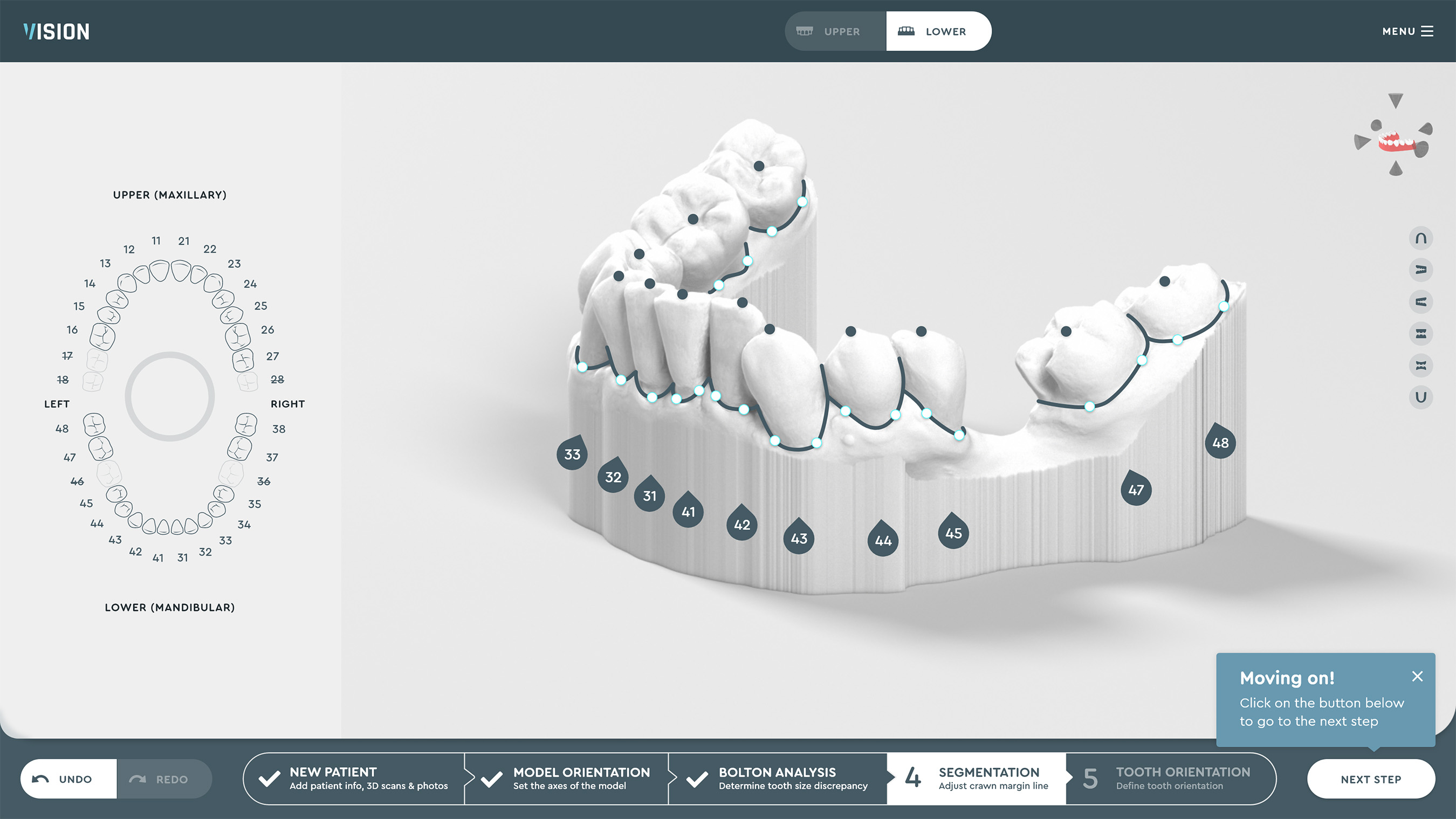 SoftSmile Software: Automated segmentation of teeth and gums