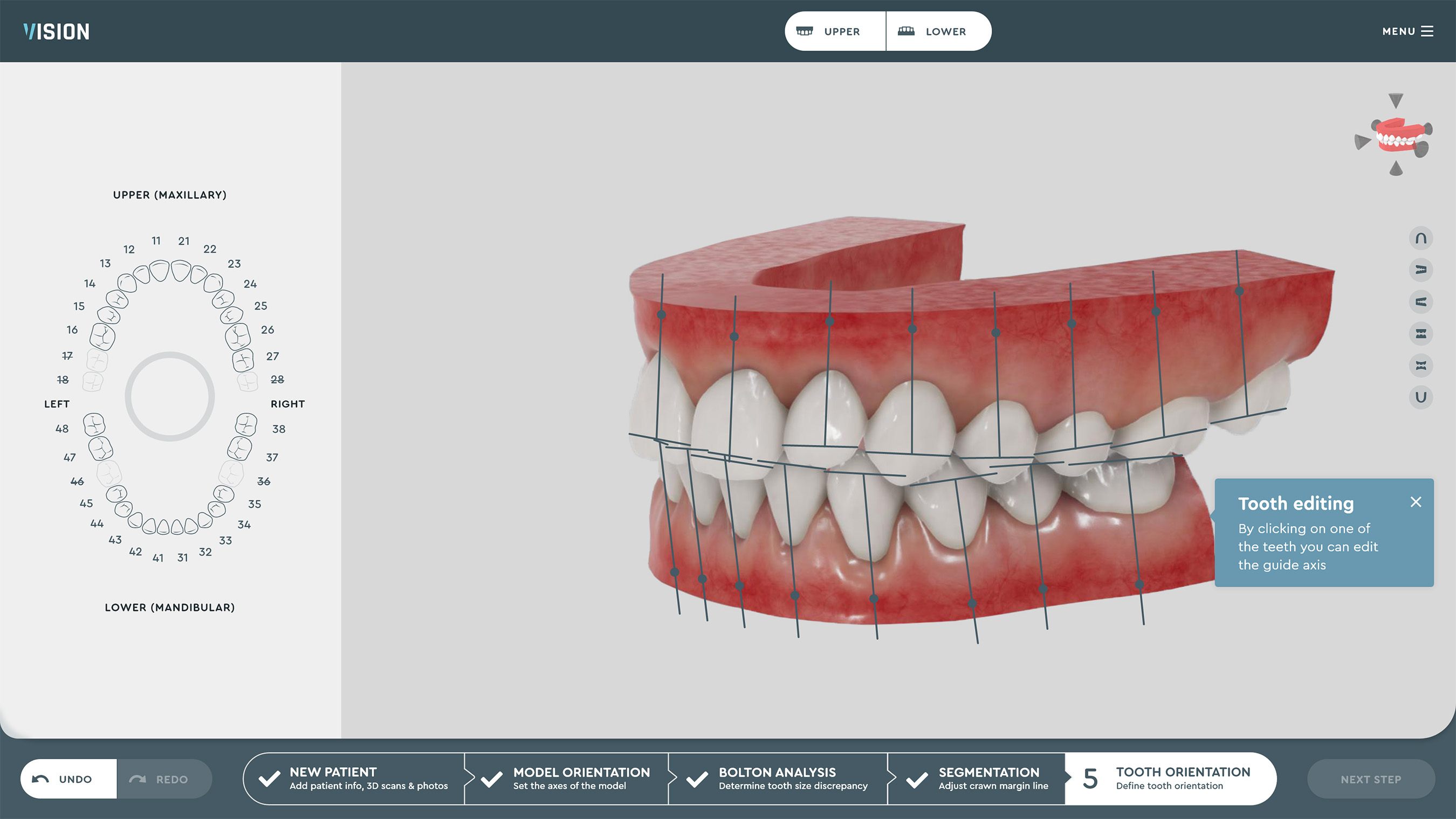 SoftSmile Software: Tooth Orientation