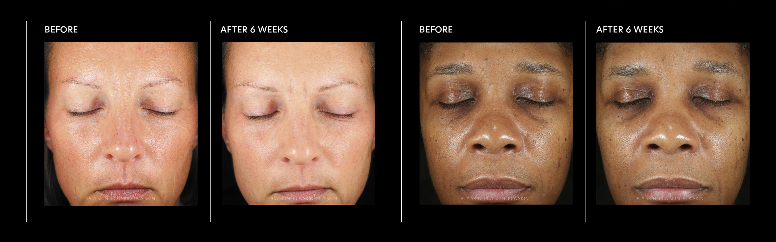 PCA SKIN Hyaluronic Acid Boosting Serum Clinical Study Results