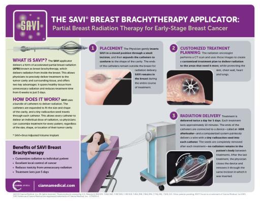 SAVI Brachytherapy Infographic